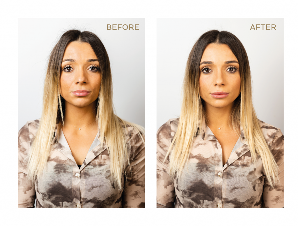 Before and After-10
