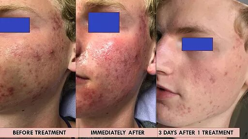 before and after mirapeel-1