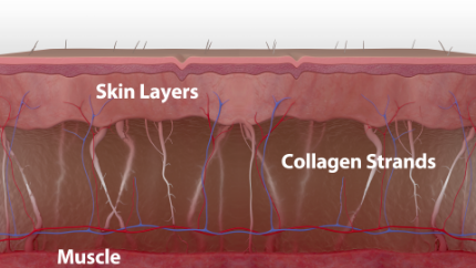 As we age, the collagen that keeps skin firm breaks down, resulting in sagging skin, fine lines, and wrinkles.