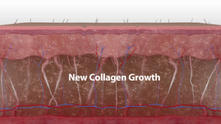 Over the next few months, the secondary healing response continues as collagen is deposited and remodeled.