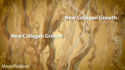 The new collagen growth tightens the skin further over time.