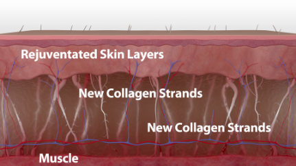 For smoother, tighter skin after just one treatment, with continued improvement for up to six months.